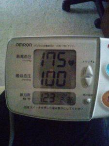 175まで血圧が上がる